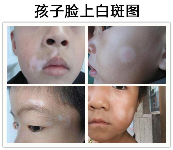 怀化5岁女童下巴有一块白色皮肤怎么回事?