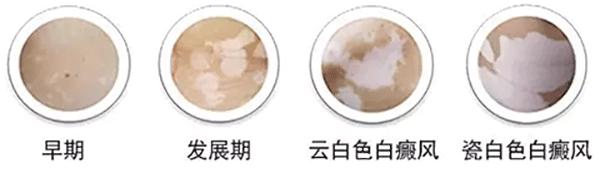 邵阳白癜风症状中颜色有哪些表现?