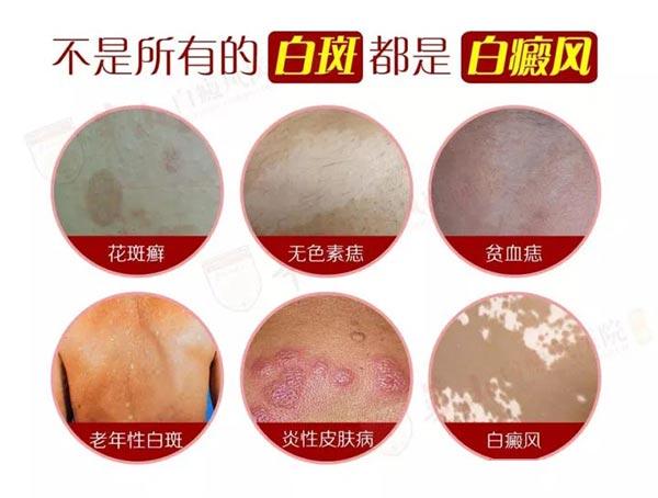 白癜风邵阳哪所医院 哪些皮肤病容易被误