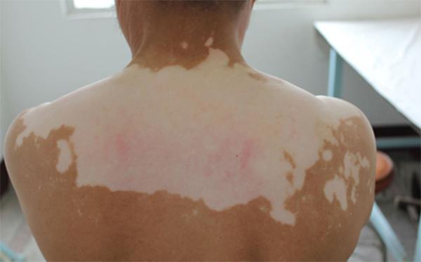 背部白癜风的症状是哪些?