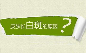 宁波治白癜风的医院哪家好 背面白斑是白癜风吗