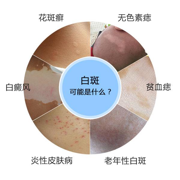 郴州儿童脸上长了白斑可能是什么皮肤病