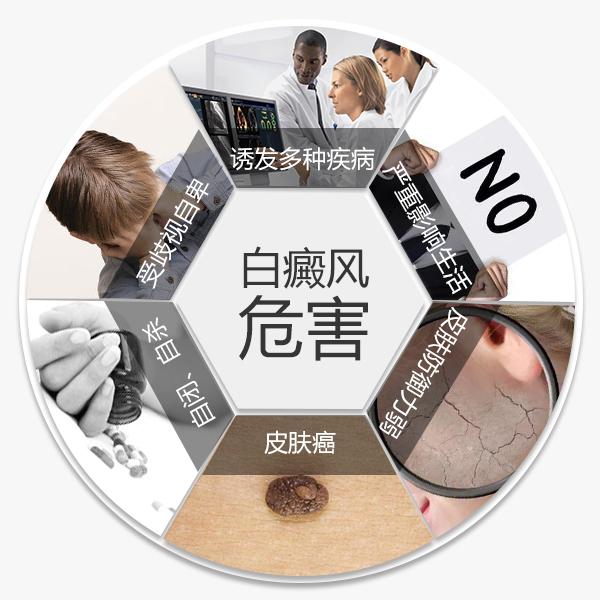 专家教你如何减少白癜风皮肤病带来的危害。