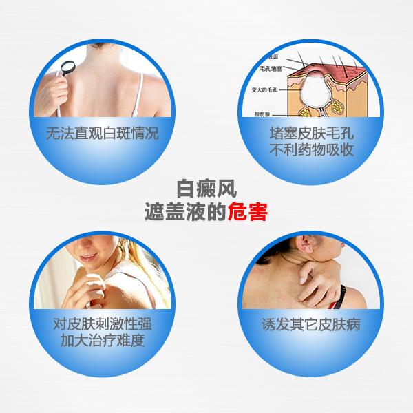 邵阳白癜风患者使用遮盖液会带来哪些危