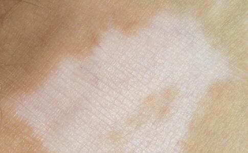 郴州白癜风患者后背有淡淡的白斑是什么呢?