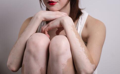 岳阳女性白癜风患者如何选择化妆品