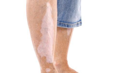 初期腳部白癜風是什么原因 長沙哪個白癜風
