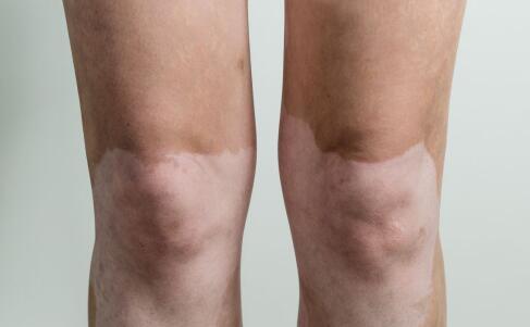 老人腿部患有白癜风的原因是什么?已解答
