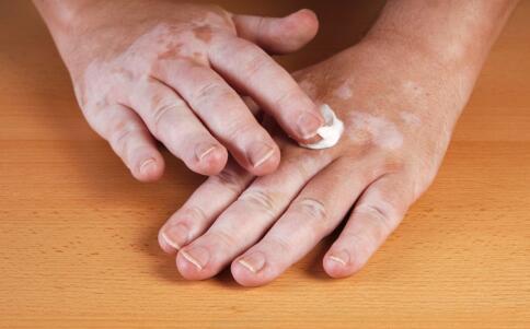 湘潭儿童肢端型白癜风如何治疗比较好呢?