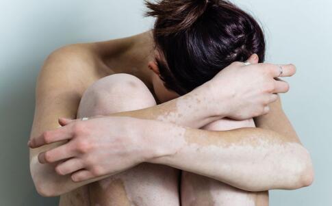 女性胸部患有白癜风是怎么回事呢