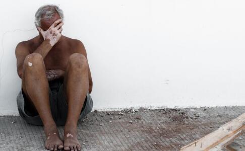 男性脚部皮肤发白是白癜风吗?能治疗好吗?