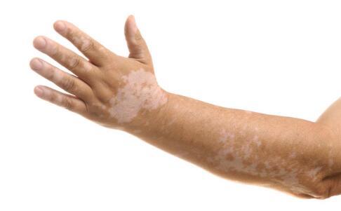 郴州白癜风医院 如何判断手臂上白斑是不是白癜