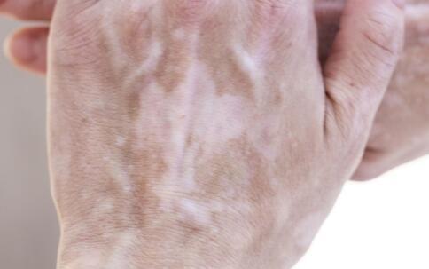 岳阳白癜风专科医院 男性患上白癜风常见的症状