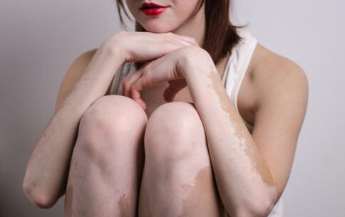 郴州女性患上白癜风后导致月经异常原因