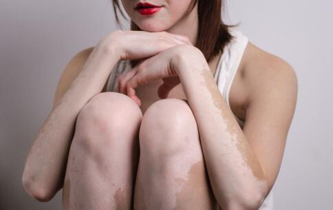 女性长了白癜风后怎么护理皮肤