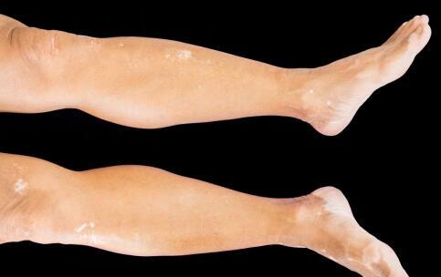 腿上大面积白斑怎么办?