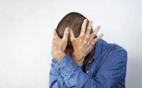 男性患上白癜风很难治吗