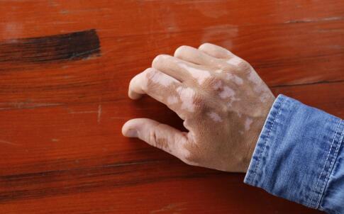 手背上有白癜风如何预防扩散到其他部位?
