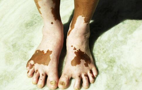 脚上白癜风是哪些因素导致的
