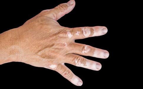 郴州白癜风患者手指甲周围有白斑怎么办 已解答