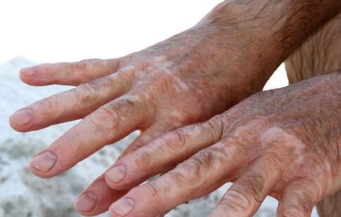 手上有很大一块皮肤变成了浅白色是白癜风吗?