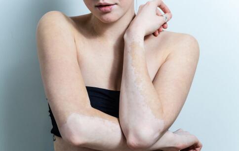 如何辨别女性白癜风的症状?