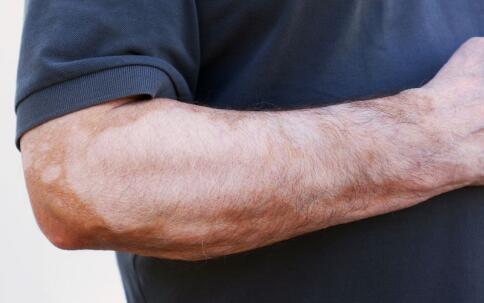 如何护理大面积老年白癜风