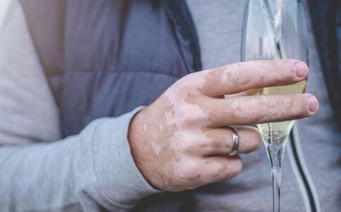 白癜风患者喝水须注意的事项有哪些?