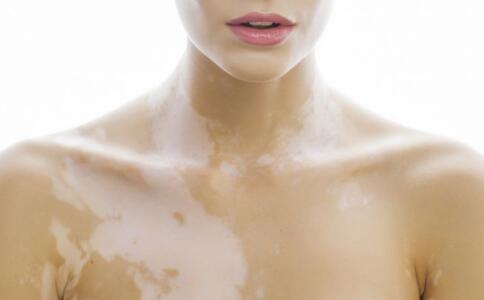 颈部白癜风的治疗为什么难?