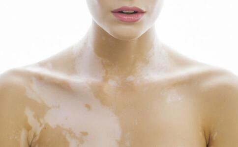 女性白癜风治疗需要注意什么
