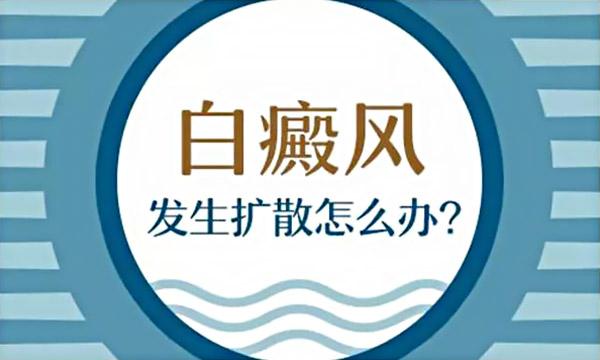 湘潭如何遏制白癜风的恶化?