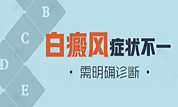 宜春白癜风医院 常见白癜风的症状