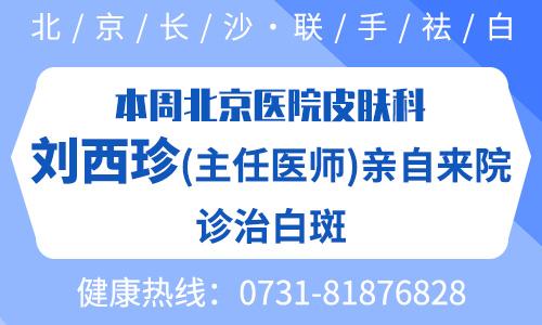 北京武警总院刘西珍又来长沙白癜风医院坐诊啦