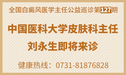 全国白癜风公益巡诊 中国医科大学皮肤科刘永生