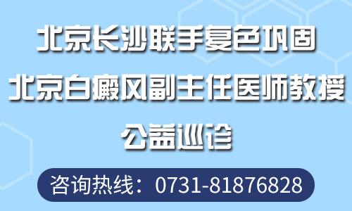 张家界复色巩固季特邀北京白癜风教授来院助阵祛白!