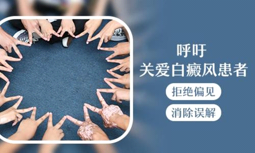 【倒计时 4 天】北京白癜风主任苏有明,即将来长沙华研公益巡诊