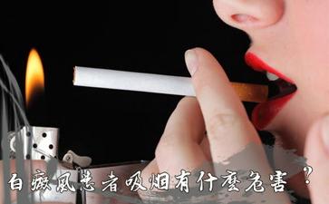 得了白癜风抽烟有什么影