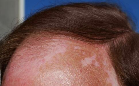 长沙治疗白癜风的医院,头上长白癜风有什么症状
